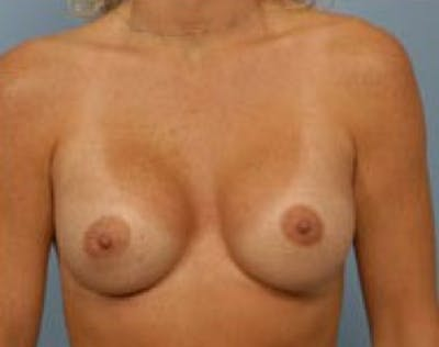 Breast Augmentation Gallery - Patient 5946621 - Image 2