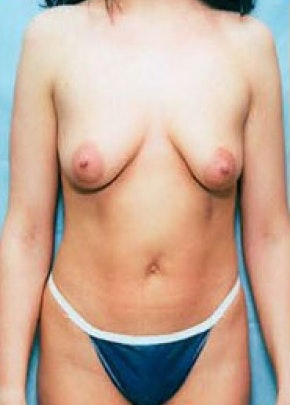 Breast Augmentation Gallery - Patient 5946629 - Image 1