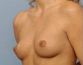 Breast Augmentation Gallery - Patient 5946647 - Image 1