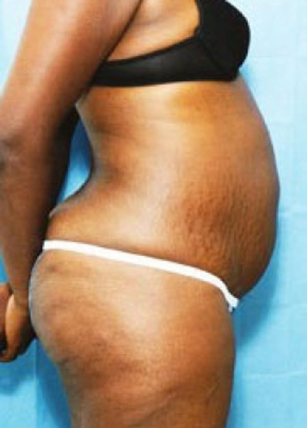 Liposuction and Smartlipo Gallery - Patient 5946651 - Image 1