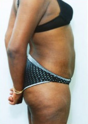 Liposuction and Smartlipo Gallery - Patient 5946651 - Image 2