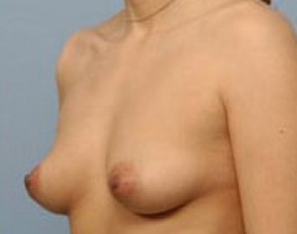 Breast Augmentation Gallery - Patient 5946653 - Image 1