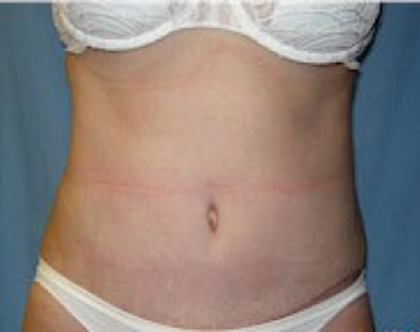 Liposuction and Smartlipo Gallery - Patient 5946667 - Image 2