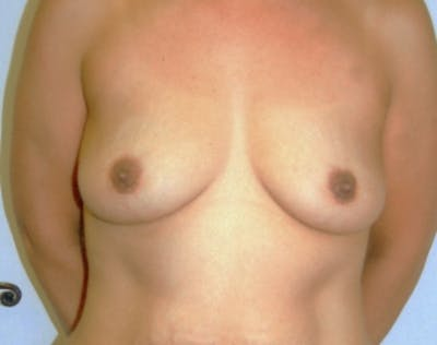 Breast Augmentation Gallery - Patient 5946670 - Image 1