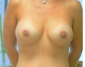 Breast Augmentation Gallery - Patient 5946670 - Image 2