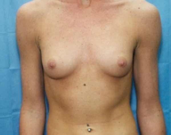 Breast Augmentation Gallery - Patient 5946677 - Image 1
