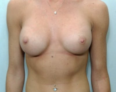 Breast Augmentation Gallery - Patient 5946677 - Image 85