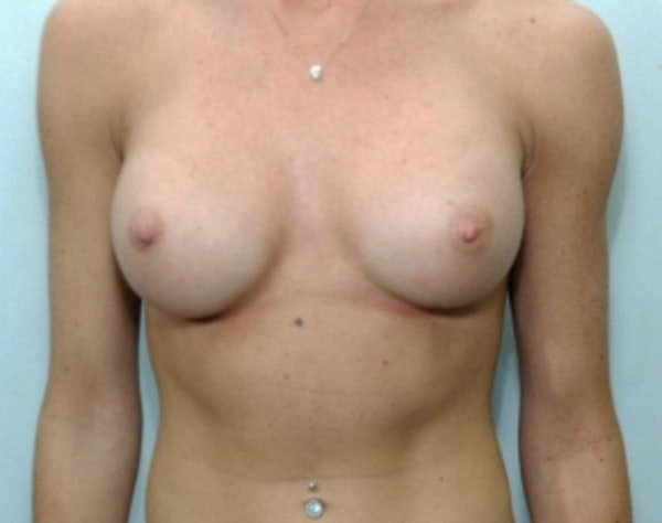 Breast Augmentation Gallery - Patient 5946677 - Image 2