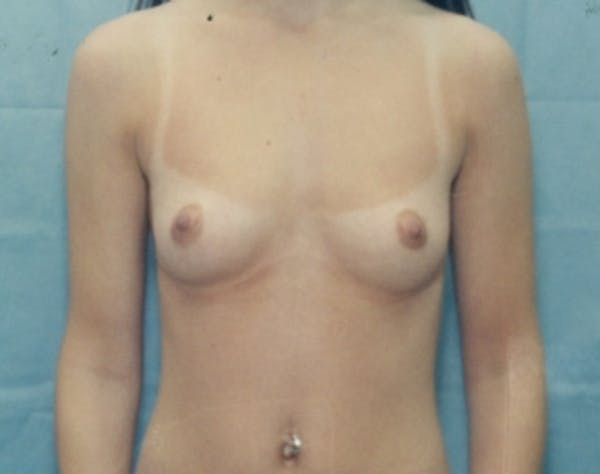 Breast Augmentation Gallery - Patient 5946685 - Image 1