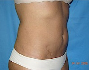 Liposuction and Smartlipo Gallery - Patient 5946684 - Image 2