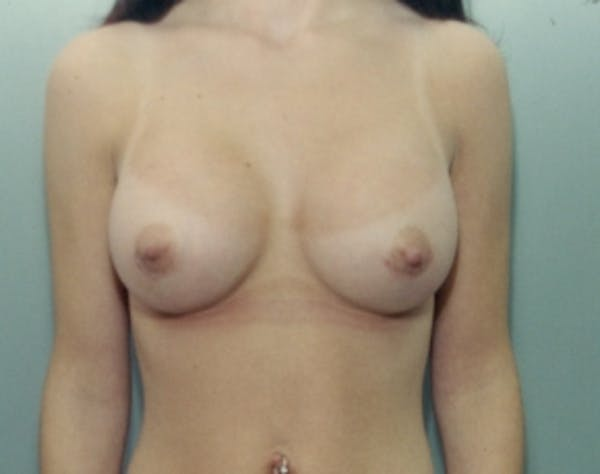 Breast Augmentation Gallery - Patient 5946685 - Image 2