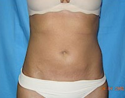 Liposuction and Smartlipo Gallery - Patient 5946691 - Image 2