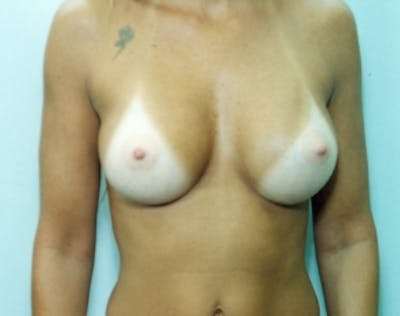 Breast Augmentation Gallery - Patient 5946693 - Image 2