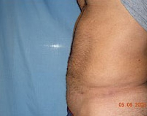 Liposuction and Smartlipo Gallery - Patient 5946697 - Image 2