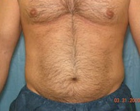 Liposuction and Smartlipo Gallery - Patient 5946712 - Image 1