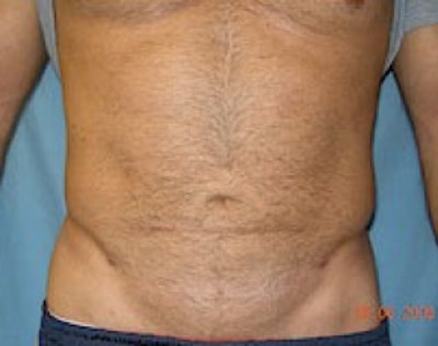 Liposuction and Smartlipo Gallery - Patient 5946712 - Image 2
