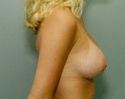 Breast Augmentation Gallery - Patient 5946714 - Image 90