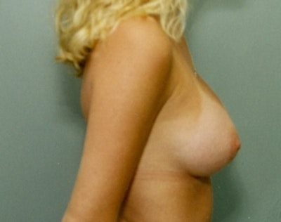 Breast Augmentation Gallery - Patient 5946714 - Image 2