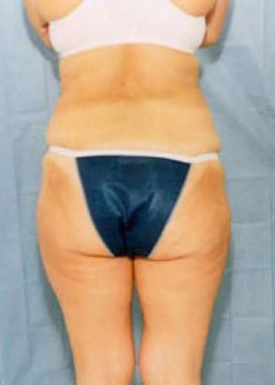 Liposuction and Smartlipo Gallery - Patient 5946722 - Image 2
