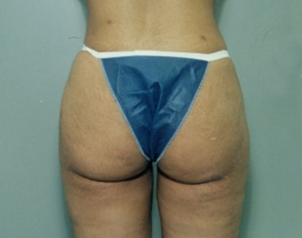 Liposuction and Smartlipo Gallery - Patient 5946750 - Image 2