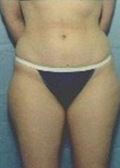 Liposuction and Smartlipo Gallery - Patient 5946772 - Image 1