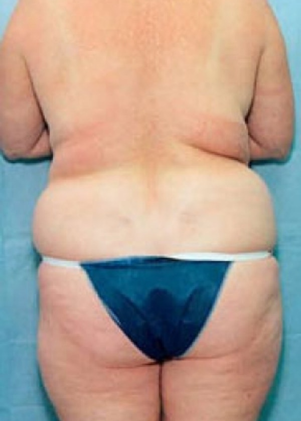 Liposuction and Smartlipo Gallery - Patient 5946782 - Image 1
