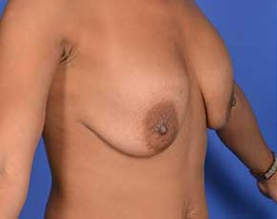 Breast Lift with Implants Gallery - Patient 5947400 - Image 1