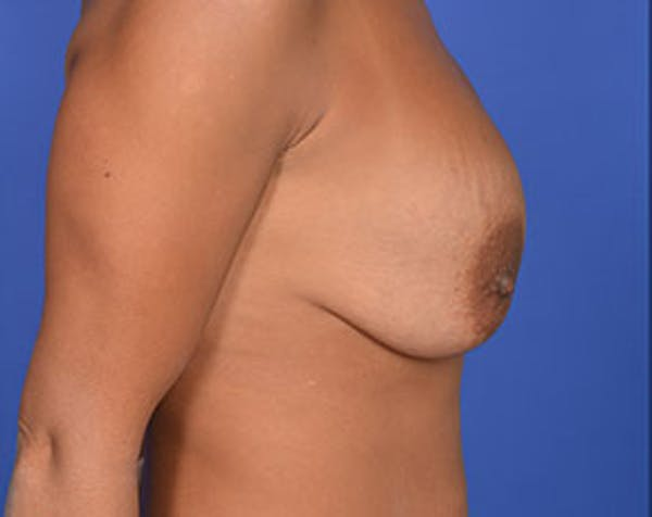 Breast Lift with Implants Gallery - Patient 5947400 - Image 3