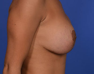 Breast Lift with Implants Gallery - Patient 5947400 - Image 4