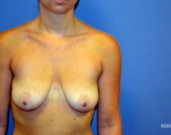 Breast Lift with Implants Gallery - Patient 5947440 - Image 1