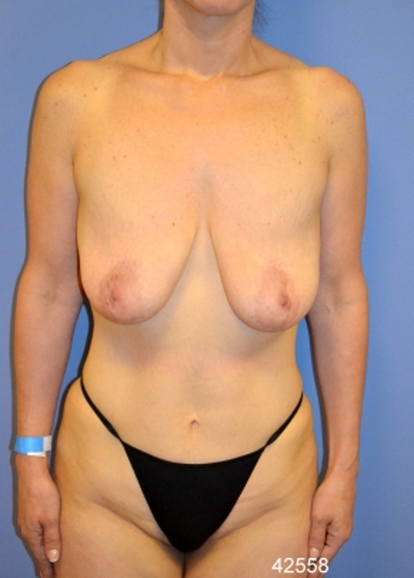 Breast Lift with Implants Gallery - Patient 5947536 - Image 1