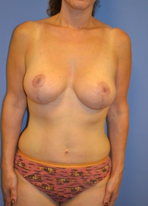 Breast Lift with Implants Gallery - Patient 5947536 - Image 2