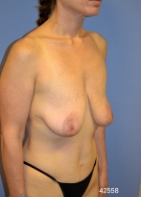 Breast Lift with Implants Gallery - Patient 5947536 - Image 3