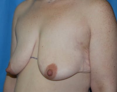 Breast Lift with Implants Gallery - Patient 5947620 - Image 1