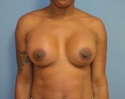 Breast Lift with Implants Gallery - Patient 5947622 - Image 2