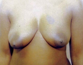 Breast Lift with Implants Gallery - Patient 5947624 - Image 1