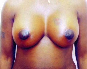 Breast Lift with Implants Gallery - Patient 5947624 - Image 2