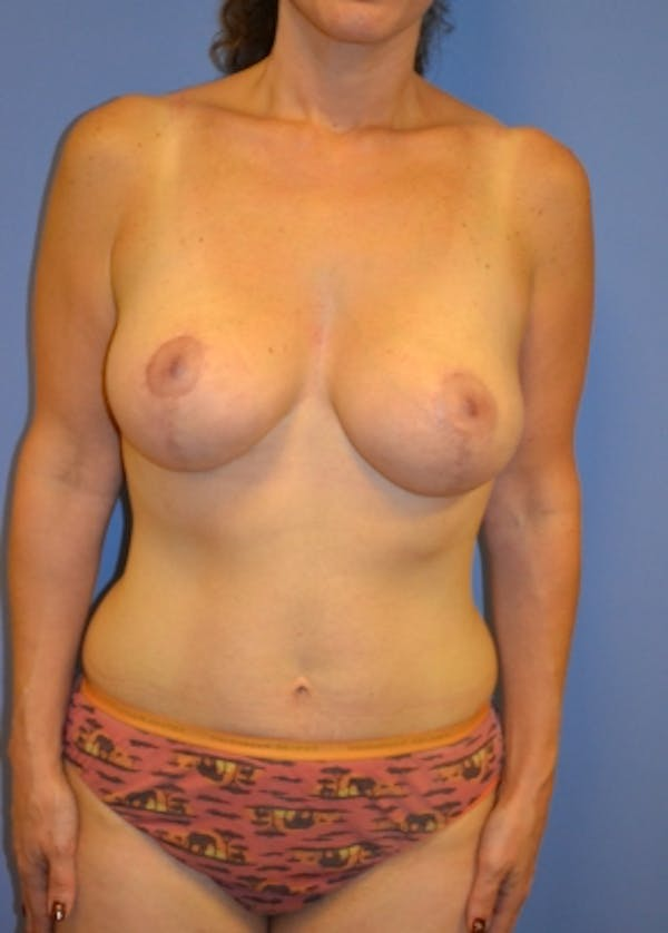 Breast Lift with Implants Gallery - Patient 5947653 - Image 2