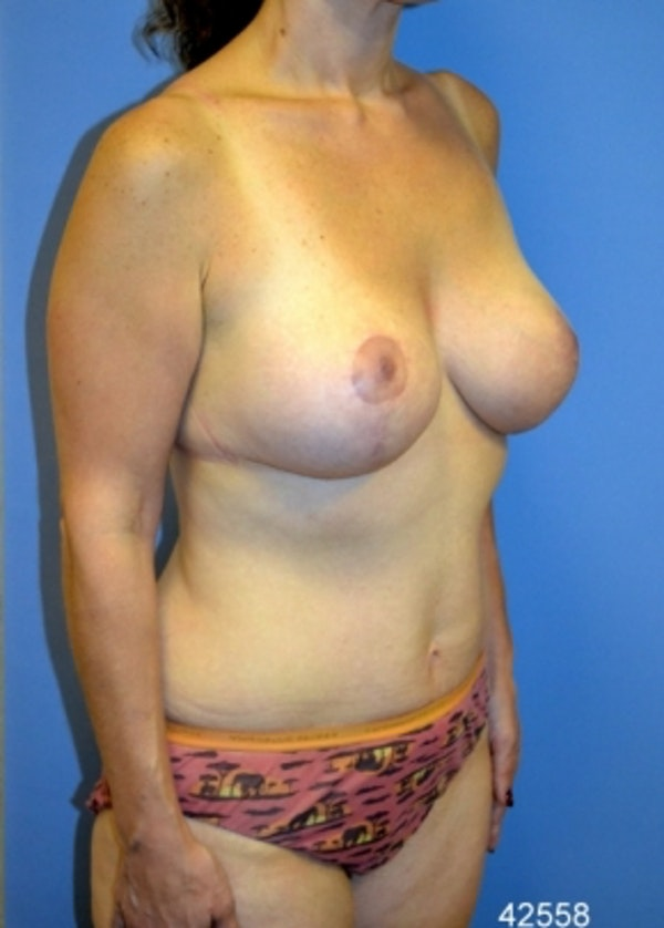 Breast Lift with Implants Gallery - Patient 5947653 - Image 4
