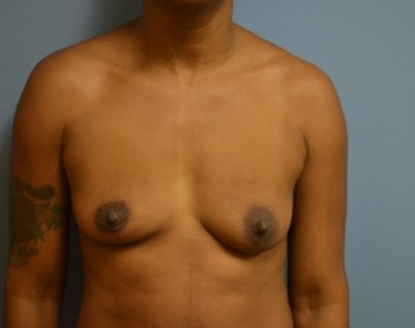 Breast Lift with Implants Gallery - Patient 5947654 - Image 1