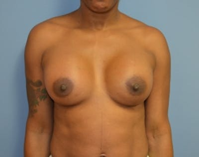 Breast Lift with Implants Gallery - Patient 5947654 - Image 2