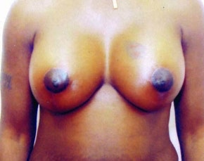 Breast Lift with Implants Gallery - Patient 5947656 - Image 2