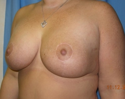 Breast Lift with Implants Gallery - Patient 5947658 - Image 2