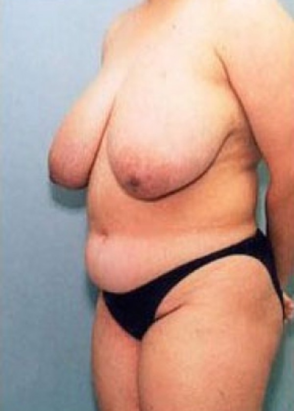Breast Lift with Implants Gallery - Patient 5947659 - Image 1