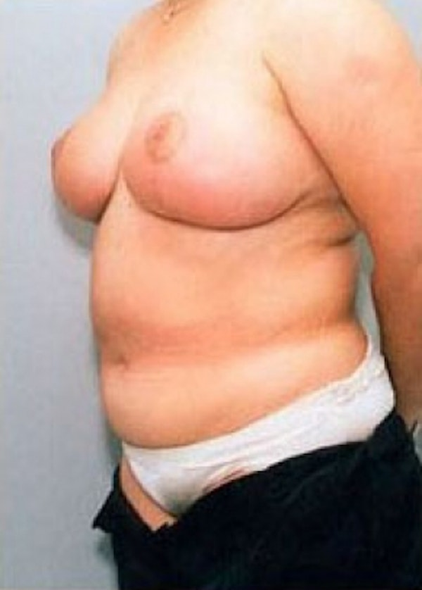 Breast Lift with Implants Gallery - Patient 5947659 - Image 2