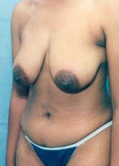 Breast Lift with Implants Gallery - Patient 5947660 - Image 1