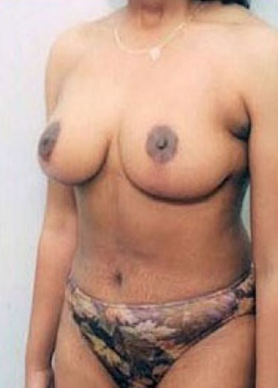 Breast Lift with Implants Gallery - Patient 5947660 - Image 2