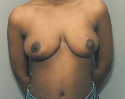 Breast Lift and Reduction Gallery - Patient 5950913 - Image 1