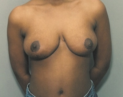 Breast Lift and Reduction Gallery - Patient 5950913 - Image 2