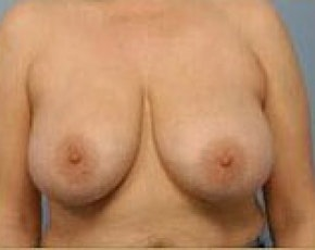 Breast Lift and Reduction Gallery - Patient 5950915 - Image 1